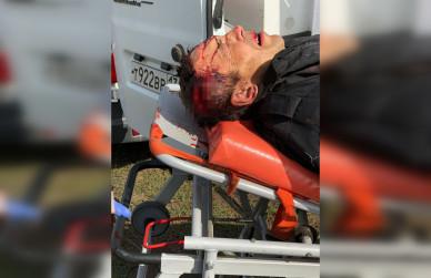 Пуля, попавшая в голову подозреваемого в подрыве отдела полиции и в тройном убийстве, задела его мозг