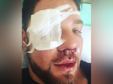 После нападения на воронежца в метро возбудят дело о покушении на убийство