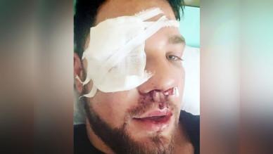 Жестоко избитый в метро воронежец хочет наказать обидчиков